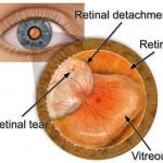 A retinal tear causes a retinal detachment