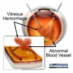 Vitrectomy Surgery to Clear Hemorrhage
