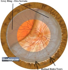 Rhegmatogenous Retinal Detachment with Retinal Tears or Holes