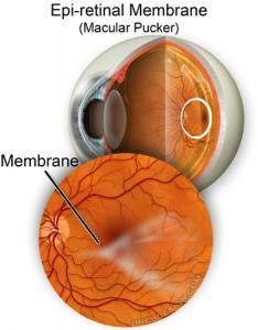 Epiretinal membrance, macular pucker, ERM, cellophane maculopathy,