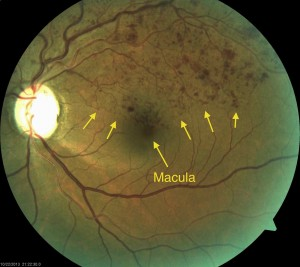 Branch Retinal Vein Occlusion with almost no macular edema.
