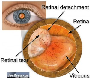 Rhegmatogenous Retinal Detachment | Randall Wong, M.D.