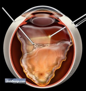 Vitrectomy for repair of retinal detachment